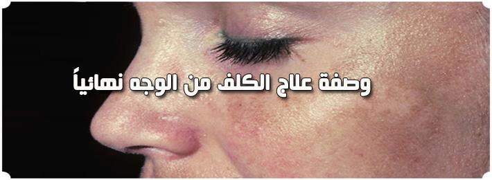 -وصفة-علاج-الكلف-من-الوجه-نهائيا.jpg